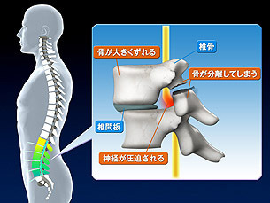 腰椎分離症(すべり症)